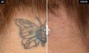 До и после удаления тату лазером