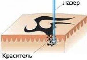 Разрушение пигмента лазером
