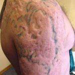 Последствия неудачного удаления тату