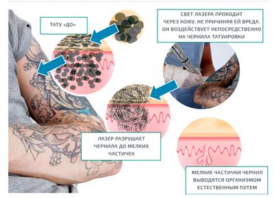 удаление зелёной татуировки лазером