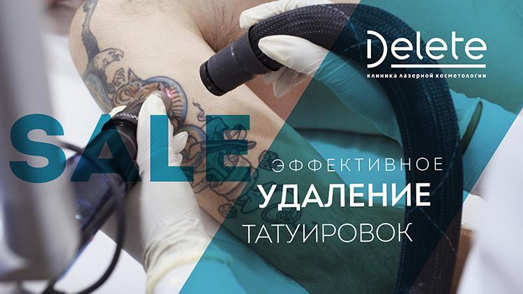 удалить татуировку со скидкой